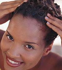Treat dandruff to avoid hair loss