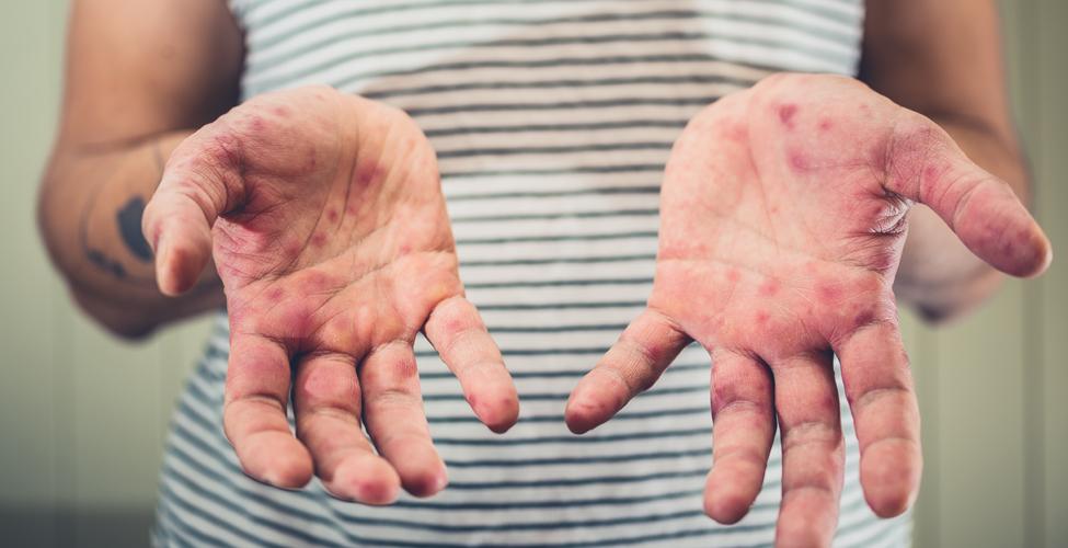 Santé : des cas de rougeole recensés par le ministère