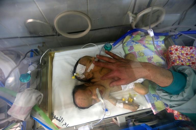Yémen: appel d'un médecin à évacuer des bébés siamois pour les séparer